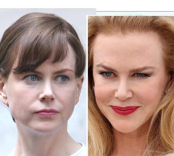 Nicole Kidman's Puffy Face At Cannes Film Festival — Doctors Speak Out